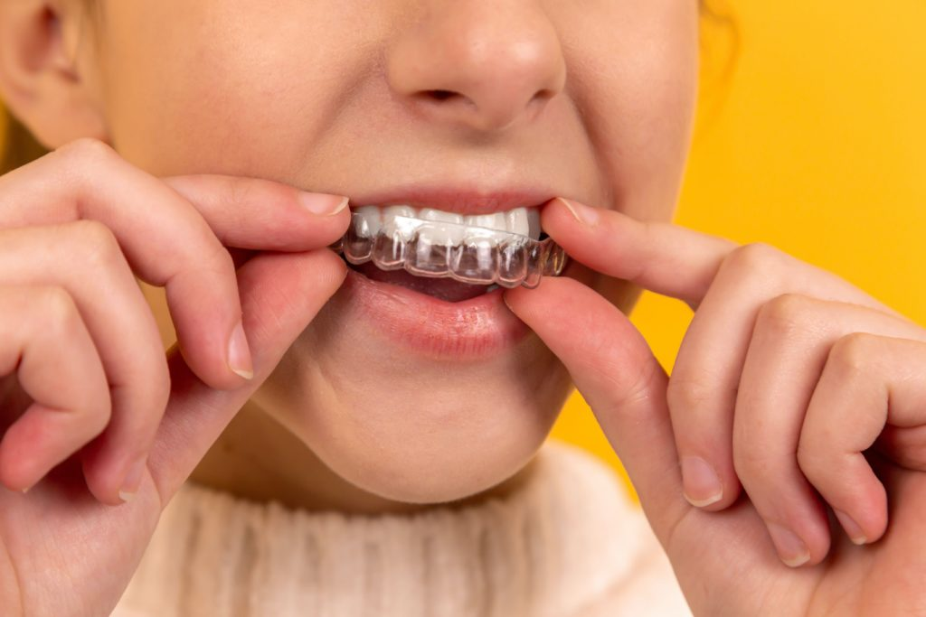 Helfen Zahnschienen gegen nächtliches Zähneknirschen?