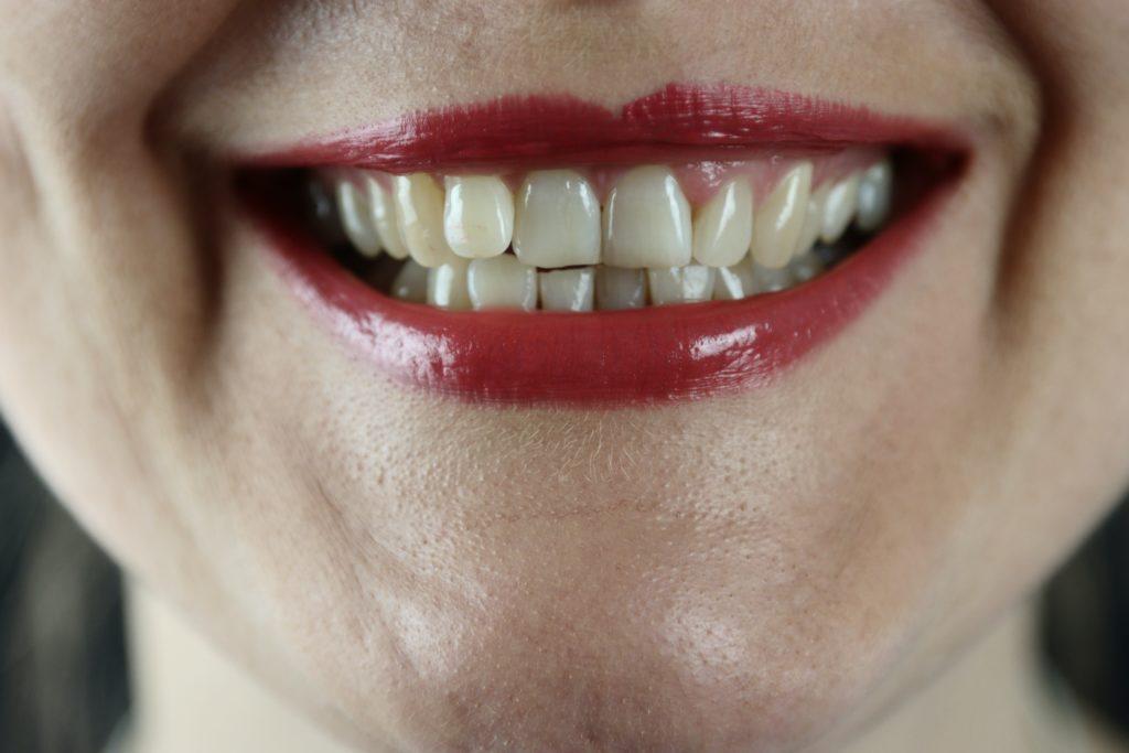 Zähneknirschen - Ursachen der Erkrankung sind vielfältig